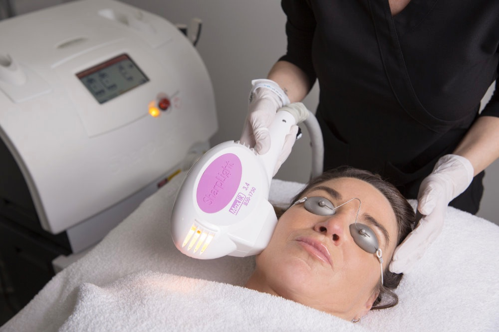Skin Tightening using infrared