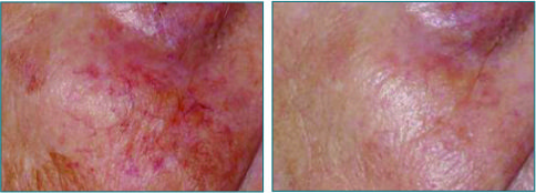 vascular pigmented lesions b&a