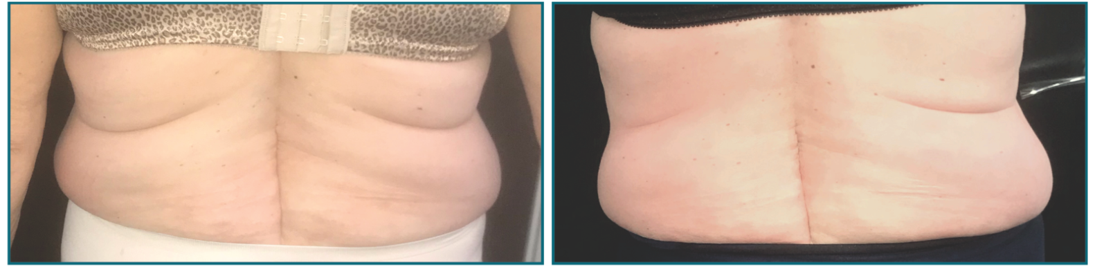 Venus Legacy Fat Reduction